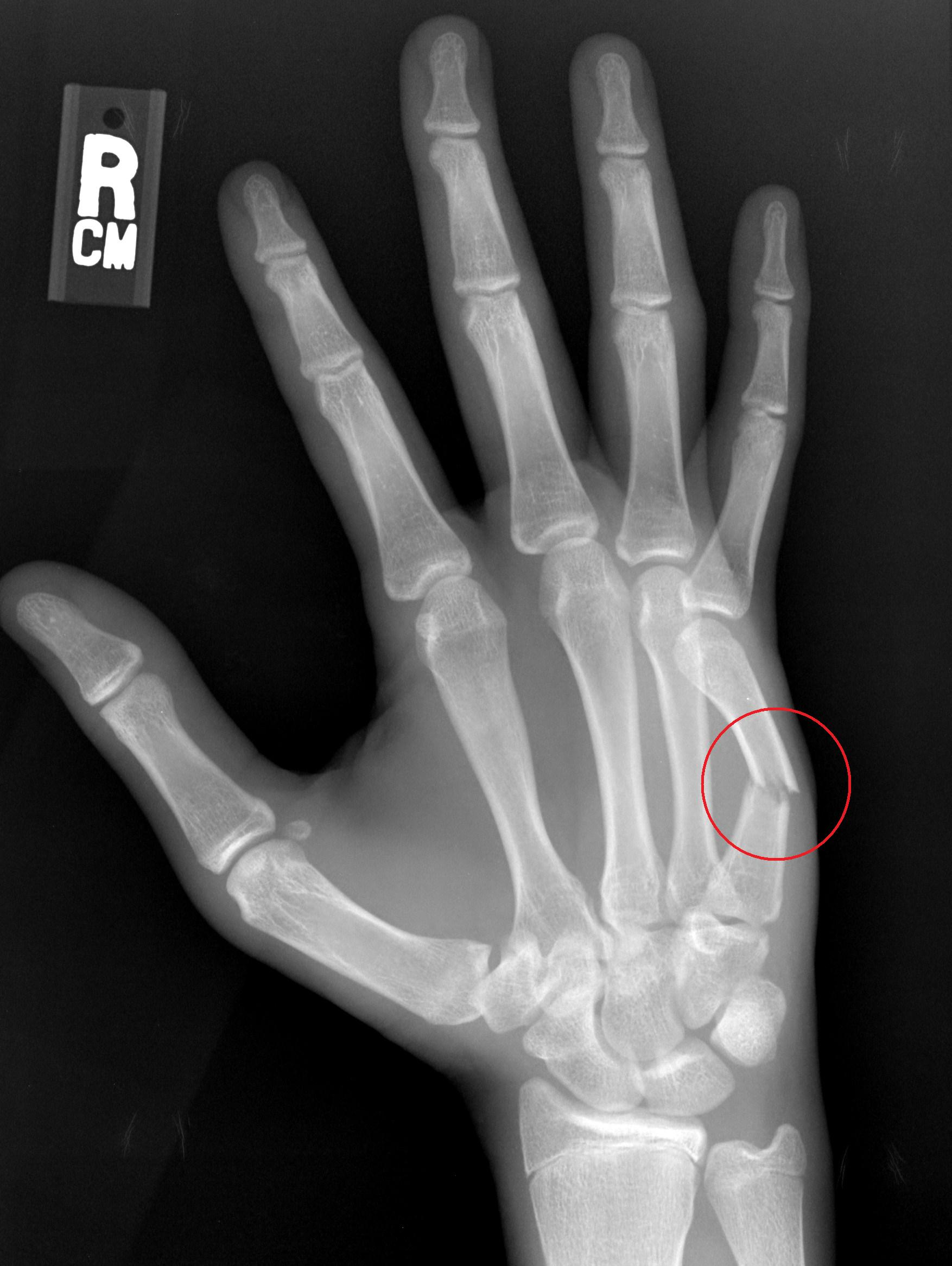 Broken Hand Treatment Orthopaedic Specialists In Raleigh Nc