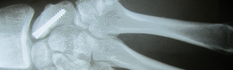 scaphoid screw