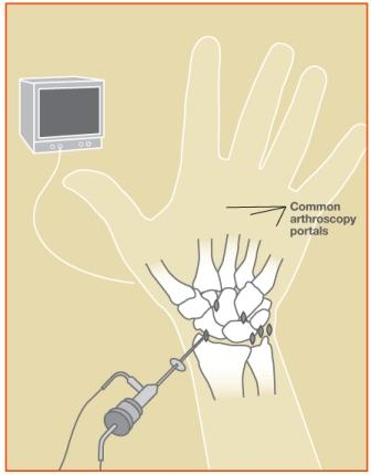 Treatment Of Tfcc Tear In Raleigh Durham Cary Nc Raleigh Hand