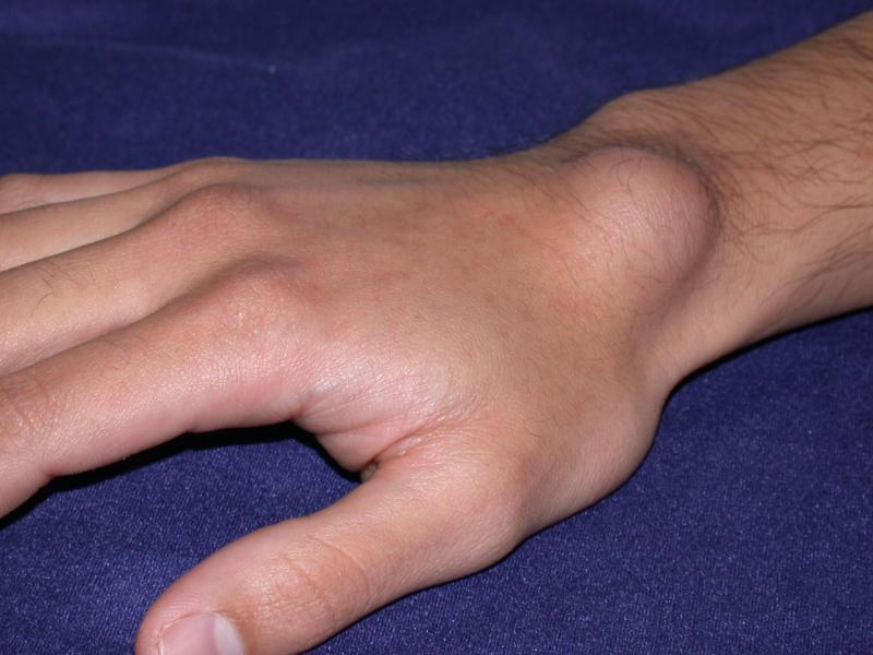 ganglion cyst of hand and wrist treatment by raleigh hand center, Skeleton
