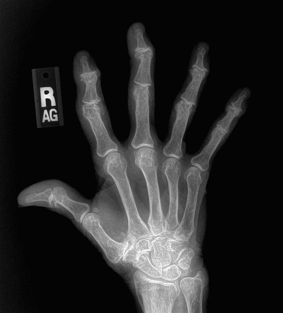 severe hand osteoarthritis