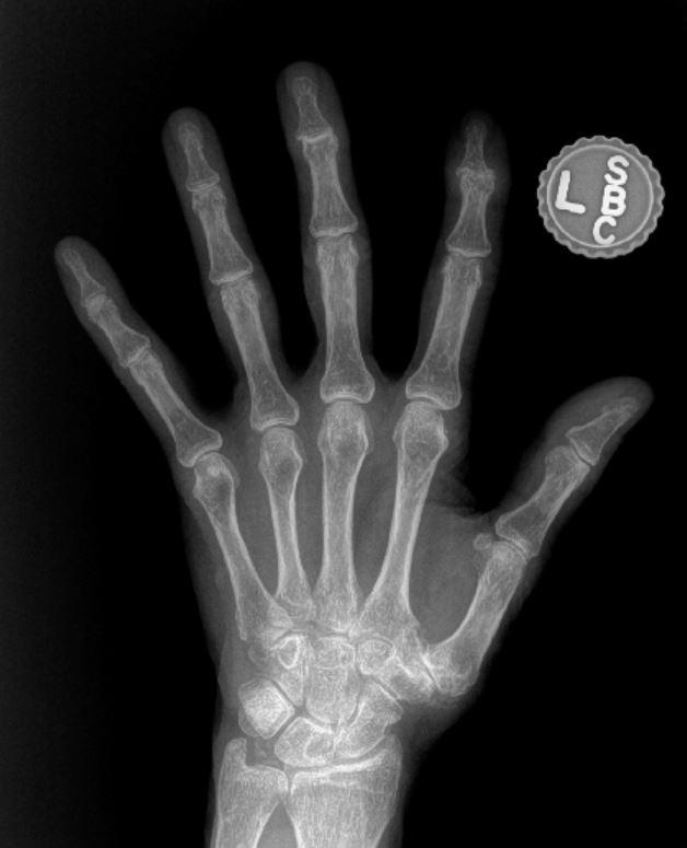 moderate hand osteoarthritis