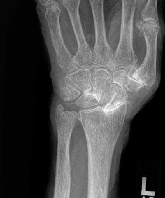 Áttekintés, Scaphoid scaphoid artritisz